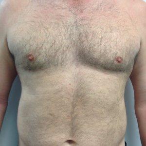 manhattan gynecomastia surgery after 3